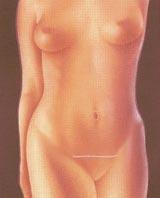 Cirugia Estetica del Abdomen