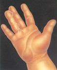 Malformaciones Congenitas Cirugia Estetica - Dr. Joaquim Suñol